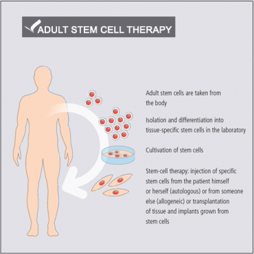 Adult stem cell therapy CO2 incubator_Memmert_STEQ America_image